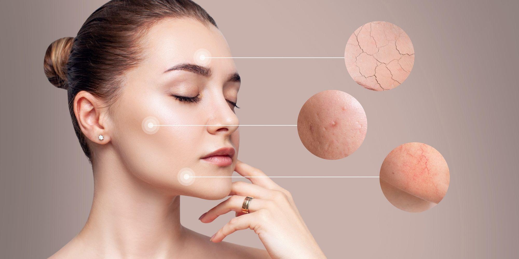Effektive Hautpflege bei Rosacea