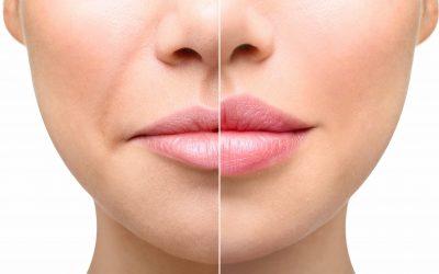 Warum werden Lippen mit zunehmendem Alter immer schmaler?